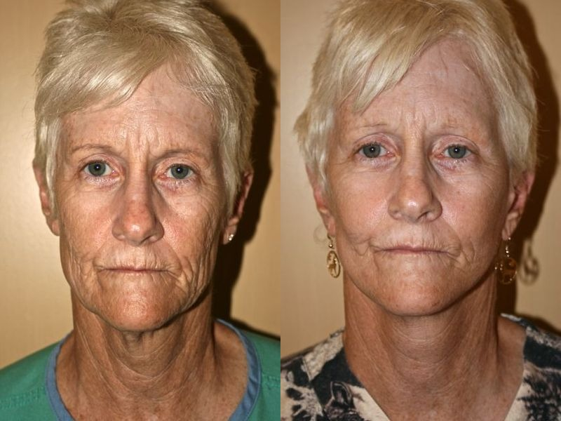 Pictures Face Lift facelift Lifestyle Lift Orlando Clermont
